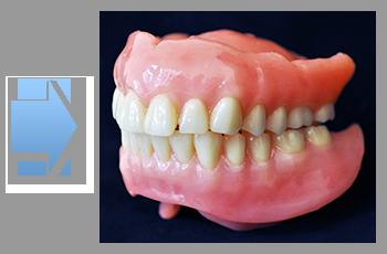 製作した総義歯