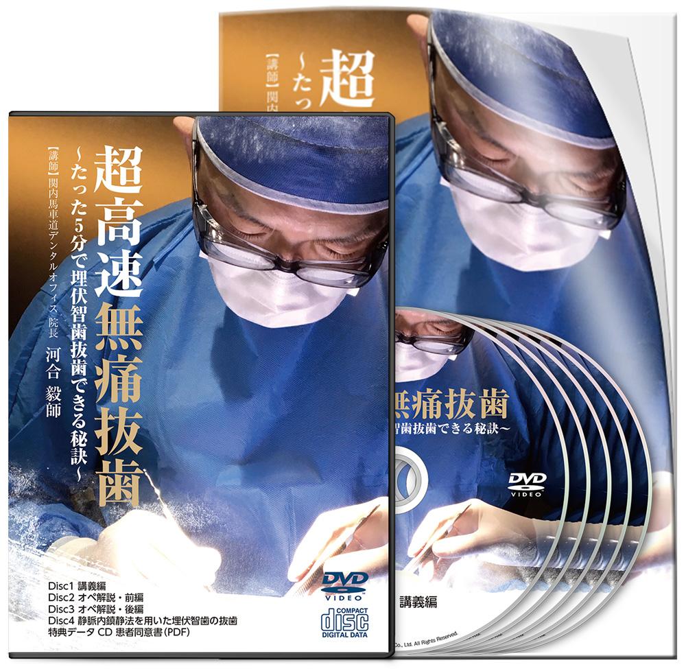 河合PJ_超高速無痛抜歯-S1(VSL用)│医療情報研究所DVD