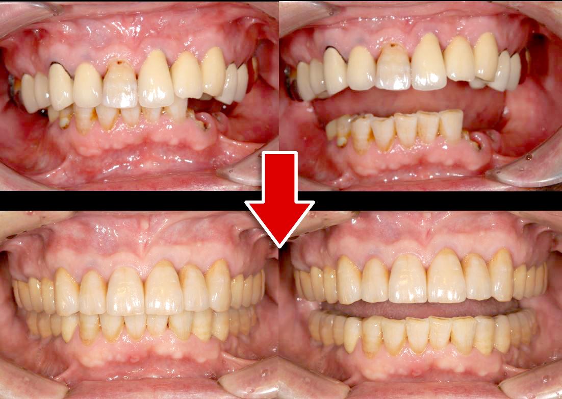 ケース①「左下3番の歯が折れた」67歳男性