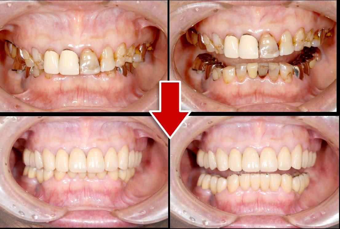 ケース②「左下の歯が痛い」73歳女性