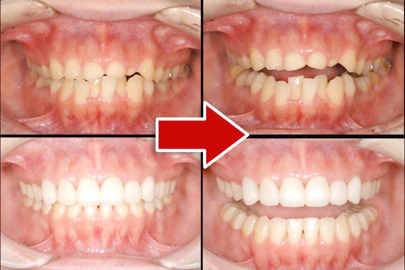 ケース②「上顎臼歯部のインレーがとれたので付けてほしいという主訴だったが、前歯部の歯が短く、下顎前歯部の叢生、エナメル質がかなり喪失」29歳女性