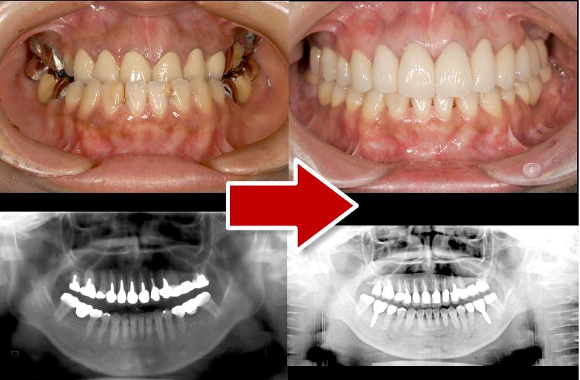 ケース③「骨格性3級で、上顎の大半に補綴(補綴部分は無髄歯)、下顎にも補綴。5年の治療期間が必要なケース」38歳女性