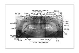 画像診断のポイント