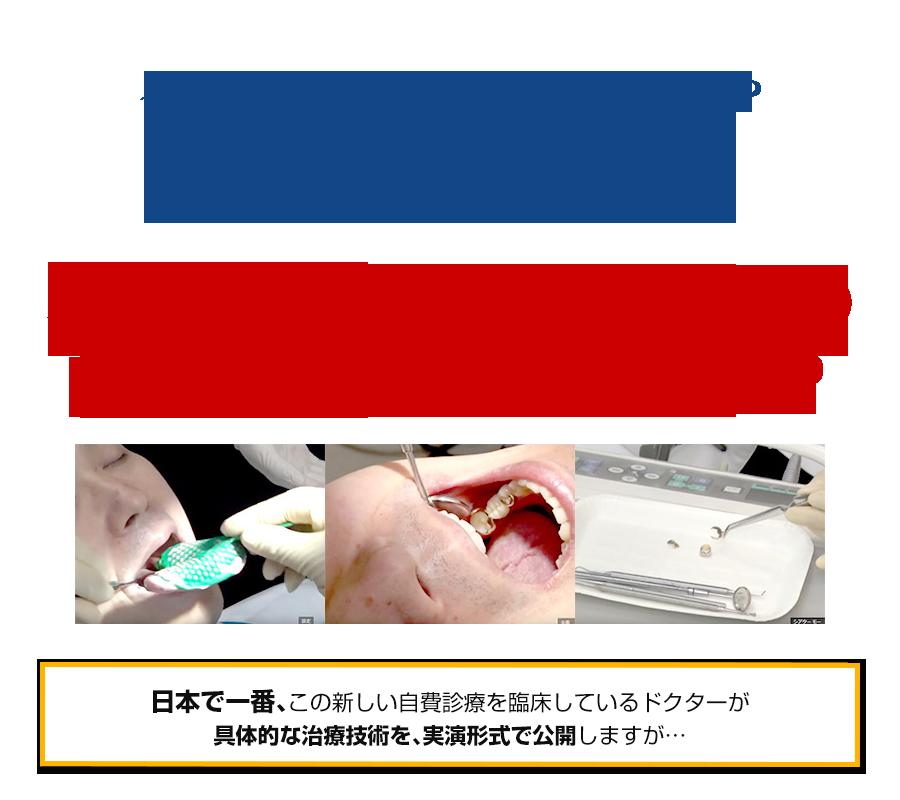 インプラントを断った患者さんや保険の義歯やブリッジにする予定だった患者さんが… なぜ、インプラントと同額の自費診療に申し込むのか?