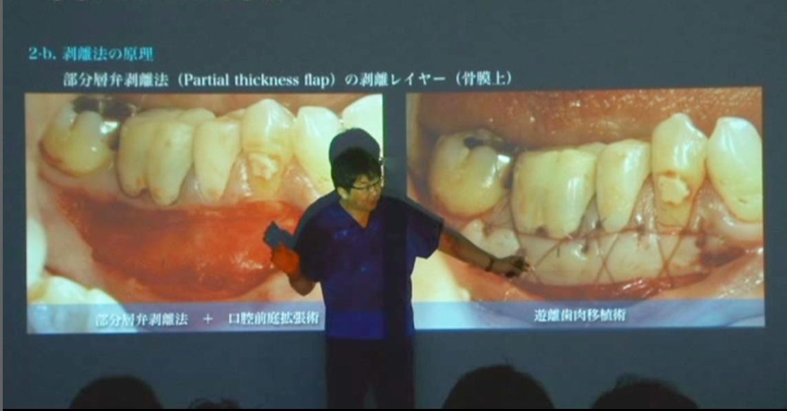 目からウロコの歯周外科技術が、動画で学べます