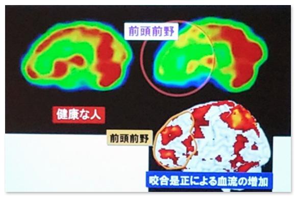 咬合について、10数年前から脳科学者の澤口先生と共同研究