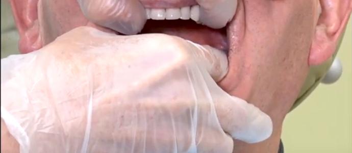 実際の患者さんをモデルに、義歯調整の暗黙知を学べます