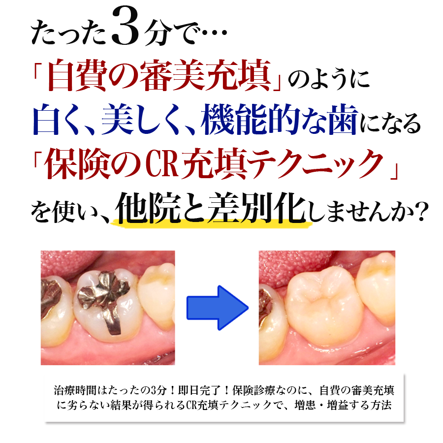 レセプト電算請求が実施された今、なぜ、多くの歯科医院が個別指導でカルテを指摘され診療報酬を減額されるのか?