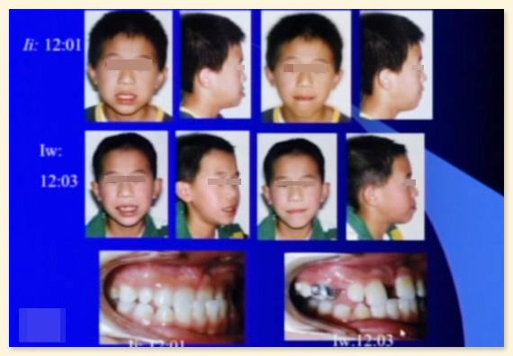 中顔面の成長が促進したケース