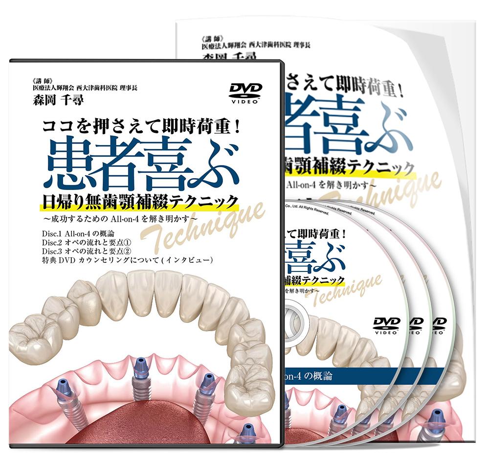 ココを押さえて即時荷重! 患者喜ぶ 日帰り無歯顎補綴テクニック ~成功するためのAll-on-4を解き明かす~