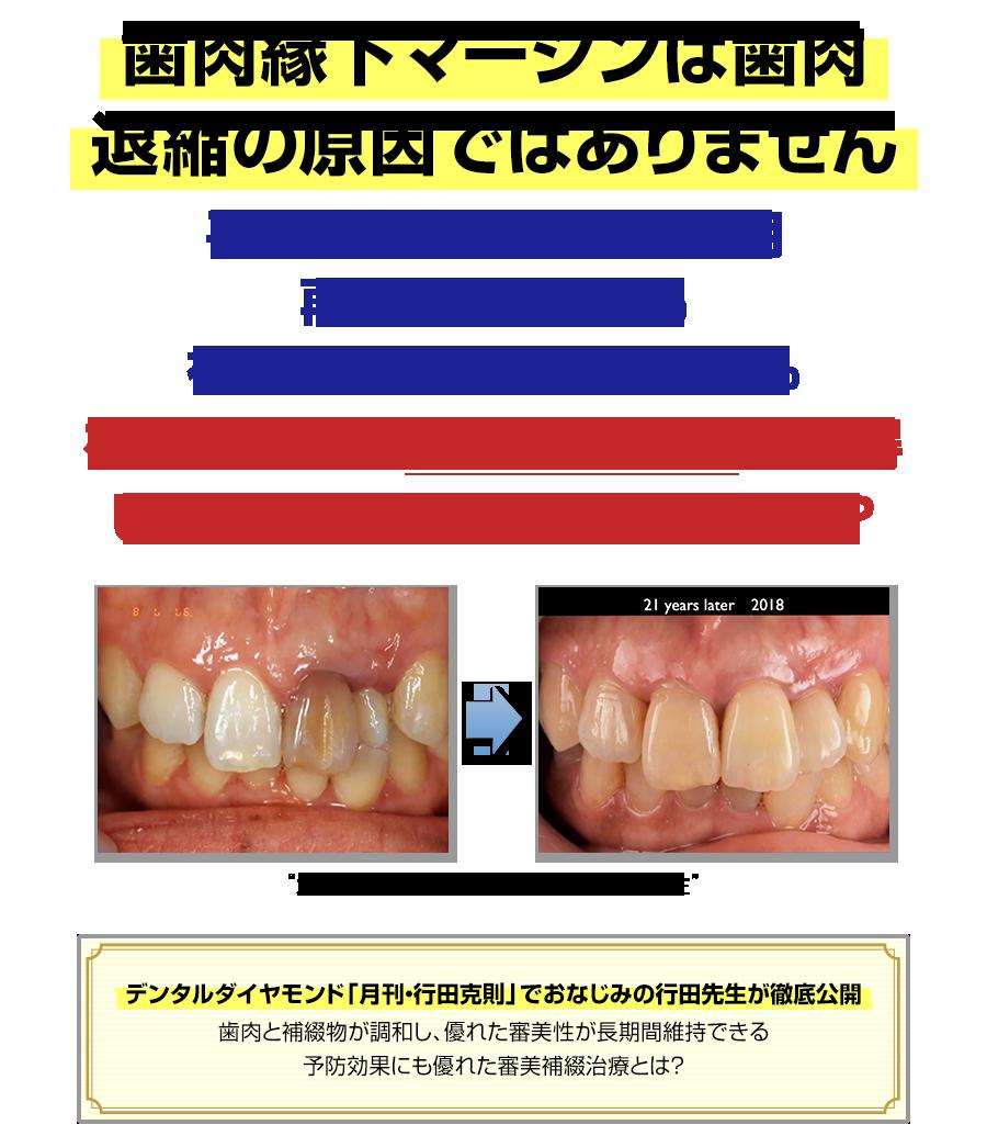 歯肉縁下マージンは歯肉退縮の原因ではありません。平均経過年数18年5ヵ月、再補綴率0.15%、補綴以外の生存率98.3%を可能にする審美補綴治療を習得したい先生は、他にいませんか?デンタルダイヤモンド「月刊・行田克則」でおなじみの行田先生が徹底公開。歯肉と補綴物が調和し、優れた審美性が長期間維持できる予防効果にも優れた審美補綴治療とは?