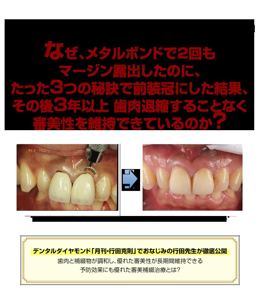 なぜ、歯肉縁下マージンがクレーム0件、約20年も審美性を維持する秘訣なのか?デンタルダイヤモンド「月刊・行田克則」でおなじみの行田先生が徹底公開。歯肉と補綴物が調和し、優れた審美性が長期間維持できる予防効果にも優れた審美補綴治療とは?