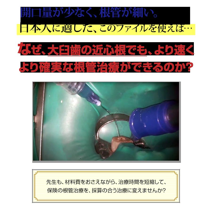 開口量が少なく、根管が細い。そんな日本人に適した、このファイルを使えば…なぜ、大臼歯の近心根でも、より速くより確実な根管治療ができるのか?先生も、材料費をおさえながら、治療時間を短縮して、保険の根管治療を、採算の合う治療に変えませんか?
