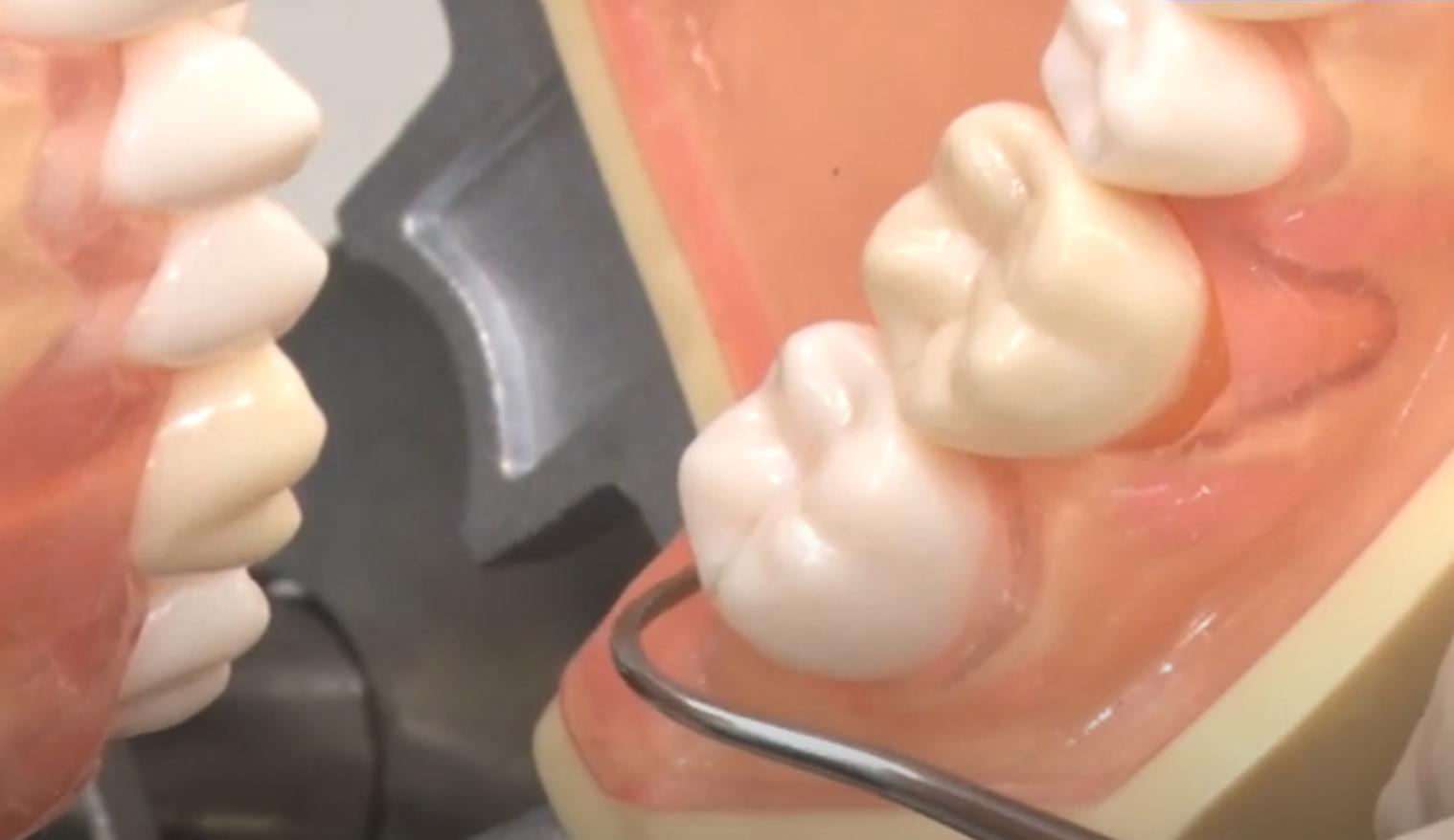 最後臼歯(遠心部)のケーリングも、ちょっとしたコツを知るだけで…