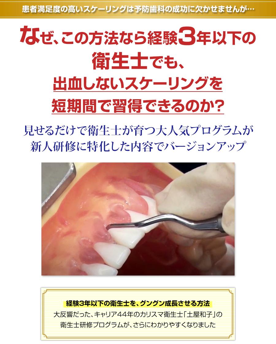 患者満足度の高いスケーリングは予防歯科の成功に欠かせませんが…なぜ、この方法なら経験3年以下の衛生士でも、出血しないスケーリングを短期間で習得できるのか?見せるだけで衛生士が育つ大人気プログラムが新人研修に特化した内容でバージョンアップ