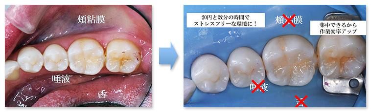 多くの歯科治療の効率が上がる技術