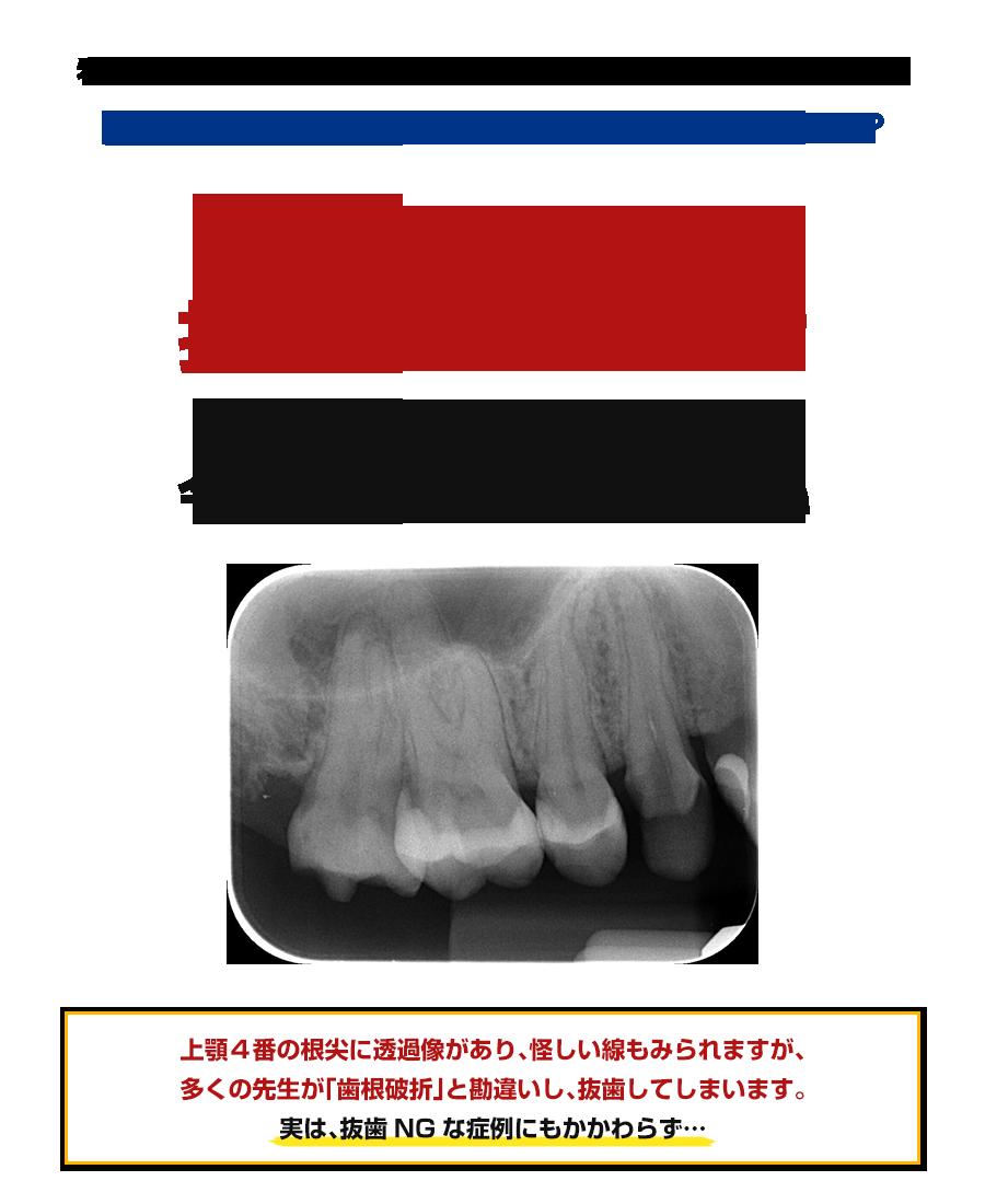 なぜ、この症例は抜歯がダメなのか?理由を知りたい先生は今すぐ読み進めてください